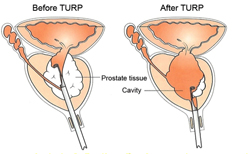 Guanacaste Transurethral resection surgery
